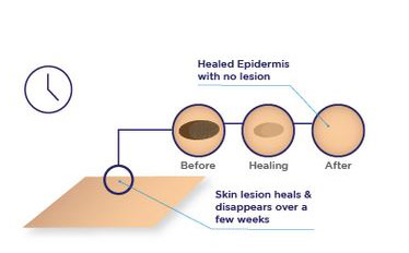 3. Targeted lesion cells are destroyed, and the lesion disappears after healing.